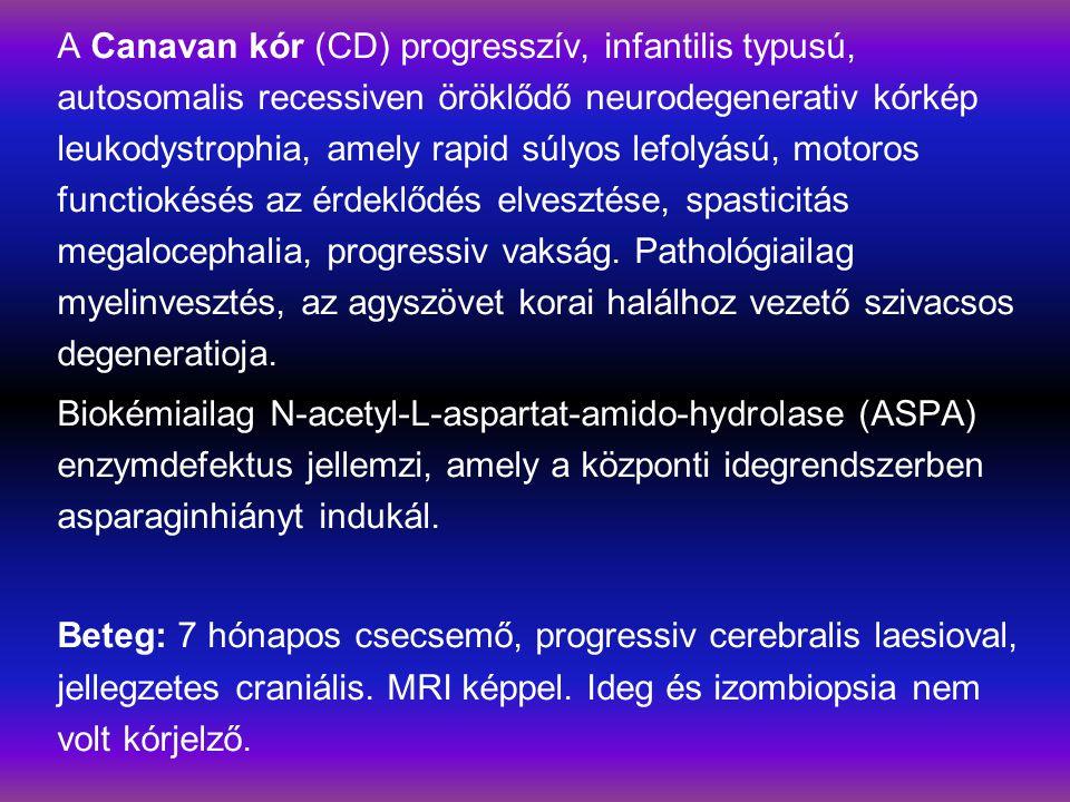 A Canavan kór (CD) progresszív, infantilis typusú, autosomalis recessiven öröklődő neurodegenerativ kórkép leukodystrophia, amely rapid súlyos lefolyású, motoros functiokésés az érdeklődés elvesztése, spasticitás megalocephalia, progressiv vakság.