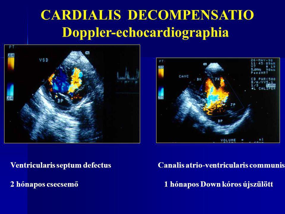 Ventricularis septum defectus Canalis atrio-ventricularis communis 2 hónapos csecsemő 1 hónapos Down kóros újszülött CARDIALIS DECOMPENSATIO Doppler-e