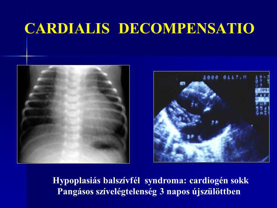 CARDIALIS DECOMPENSATIO Hypoplasiás balszívfél syndroma: cardiogén sokk Pangásos szívelégtelenség 3 napos újszülöttben
