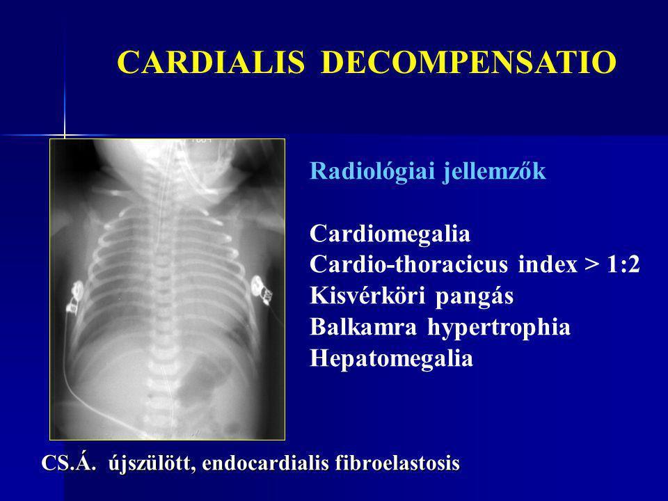 CS.Á. újszülött, endocardialis fibroelastosis Radiológiai jellemzők Cardiomegalia Cardio-thoracicus index > 1:2 Kisvérköri pangás Balkamra hypertrophi