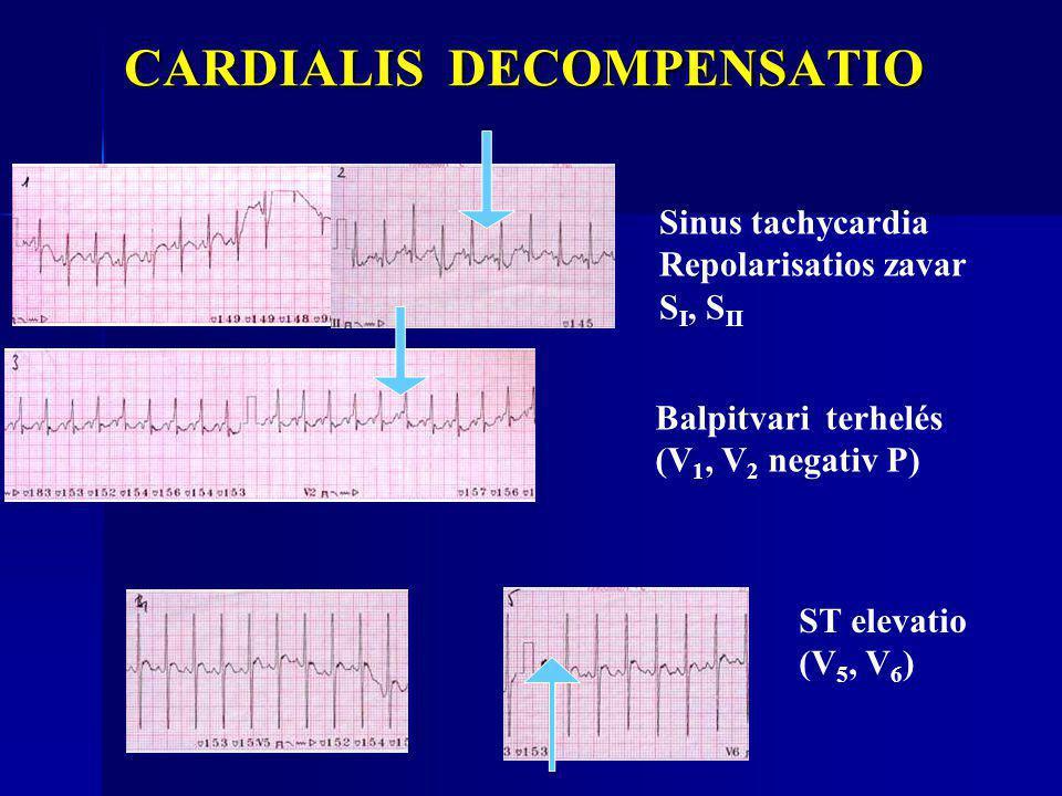 CARDIALIS DECOMPENSATIO CARDIALIS DECOMPENSATIO Balpitvari terhelés (V 1, V 2 negativ P) ST elevatio (V 5, V 6 ) Sinus tachycardia Repolarisatios zava