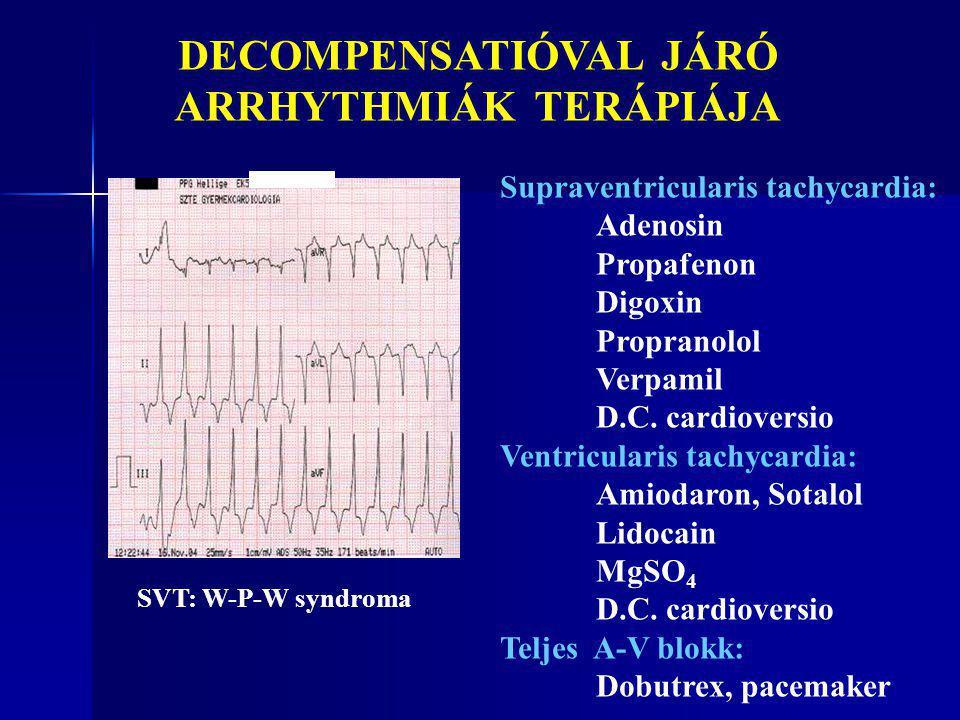 SVT: W-P-W syndroma DECOMPENSATIÓVAL JÁRÓ ARRHYTHMIÁK TERÁPIÁJA Supraventricularis tachycardia: Adenosin Propafenon Digoxin Propranolol Verpamil D.C.