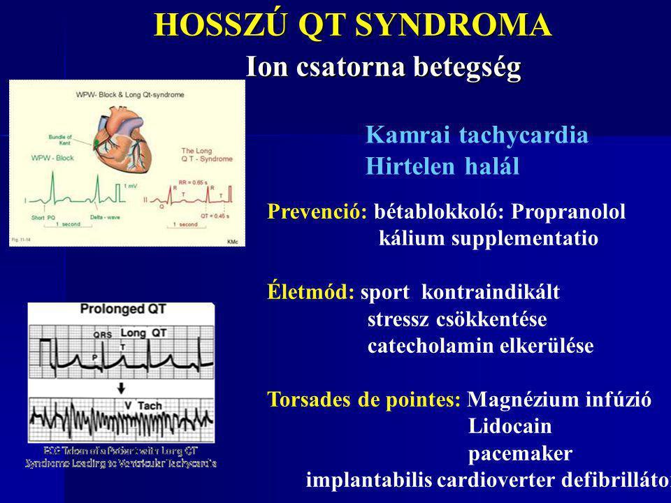 HOSSZÚ QT SYNDROMA Ion csatorna betegség HOSSZÚ QT SYNDROMA Ion csatorna betegség Prevenció: bétablokkoló: Propranolol kálium supplementatio Életmód: