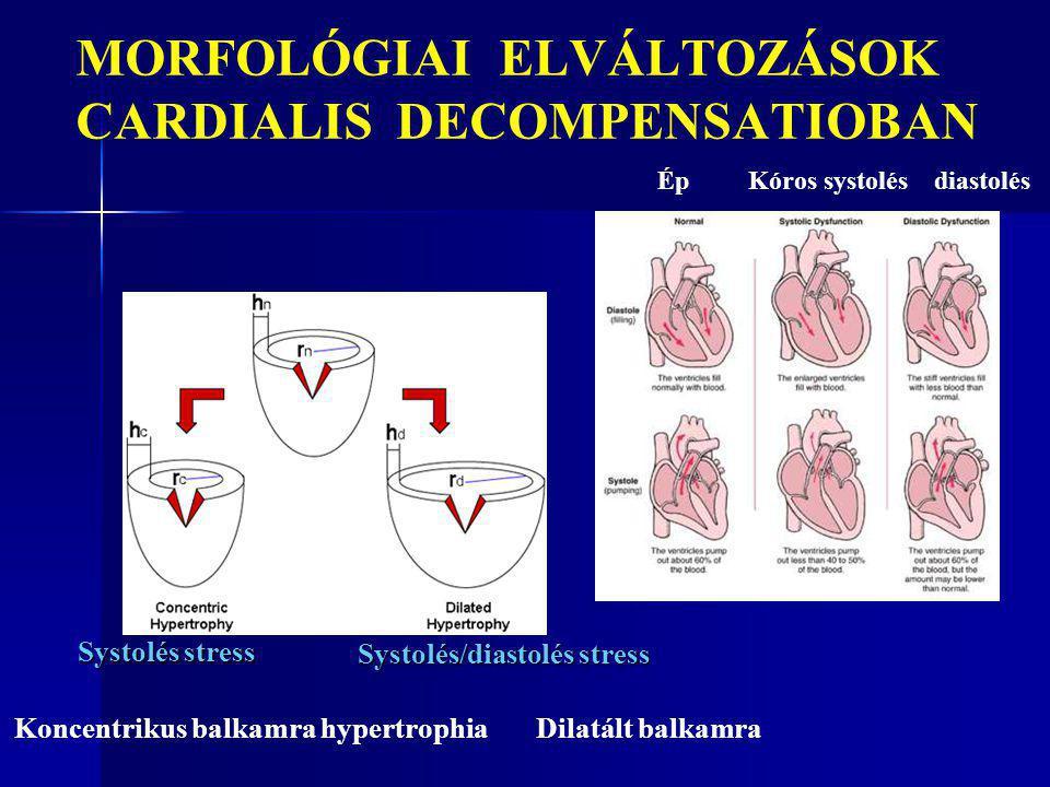 MORFOLÓGIAI ELVÁLTOZÁSOK CARDIALIS DECOMPENSATIOBAN Koncentrikus balkamra hypertrophia Dilatált balkamra Systolés stress Systolés/diastolés stress Ép