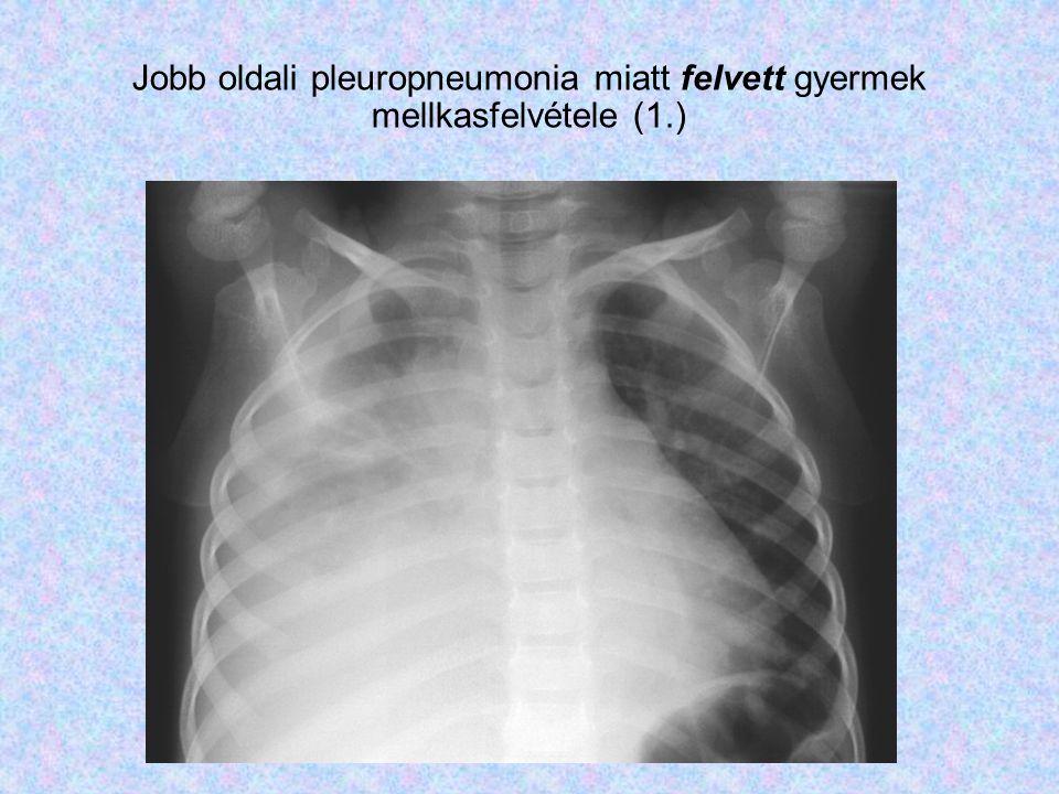 Jobb oldali pleuropneumonia miatt felvett gyermek mellkasfelvétele (1.)