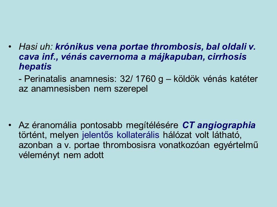 Hasi uh: krónikus vena portae thrombosis, bal oldali v. cava inf., vénás cavernoma a májkapuban, cirrhosis hepatis - Perinatalis anamnesis: 32/ 1760 g