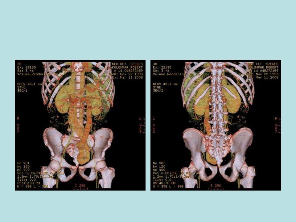 További eredmények: - RDV: fájdalom, véres, nyálkás székletnyom - vashiányos anaemia (GIT vérvesztés) - CRP ( 10 mg/l ), We ( 65mm/h ), Fibr.
