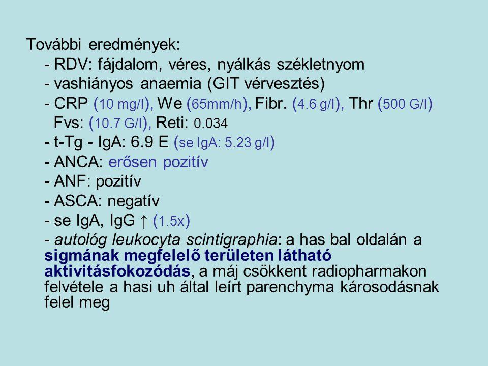 További eredmények: - C3, C4: normális - alfa-1-anitripszin: normális - MS/MS: negatív - víruszerológiai vizsgálatok (hepatitis, CMV, EBV) – akut infekciót kizártak - coeruloplazmin: kissé csökkent - se réz: normális - szemészeti vizsgálat Wilson kórra jellemző eltérést nem talált - vizelet réz ürítés emelkedett - colonoscopia: a többszöri megbeszélés, időpont egyeztetés ellenére sem egyeztek bele a szülők