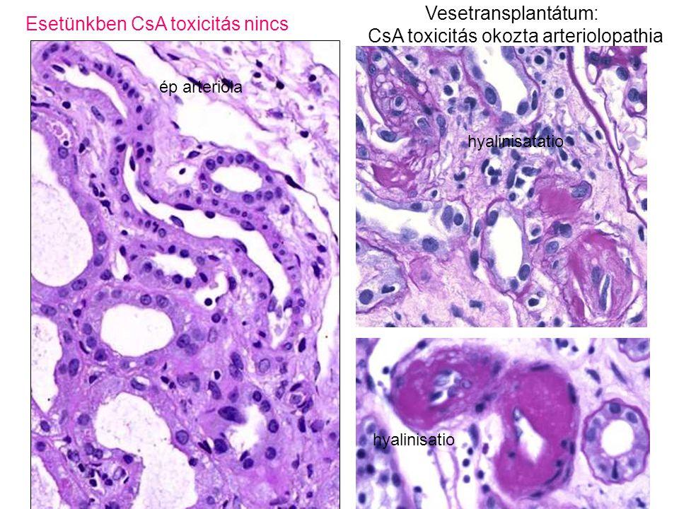 Esetünkben CsA toxicitás nincs Vesetransplantátum: CsA toxicitás okozta arteriolopathia ép arteriola hyalinisatatio hyalinisatio
