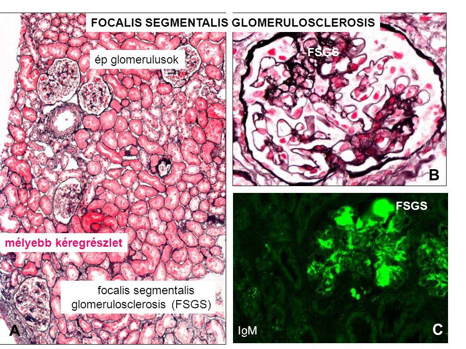 focalis segmentalis glomerulosclerosis (FSGS) ép glomerulusok mélyebb kéregrészlet FSGS IgM A B C C FOCALIS SEGMENTALIS GLOMERULOSCLEROSIS