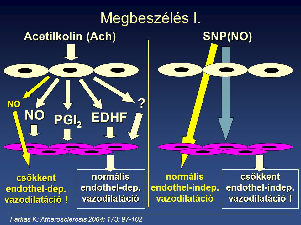 Megbeszélés I. Acetilkolin (Ach) SNP(NO) NO PGI 2 EDHF ? normális endothel-dep. vazodilatáció Farkas K: Atherosclerosis 2004; 173: 97-102 NO csökkent