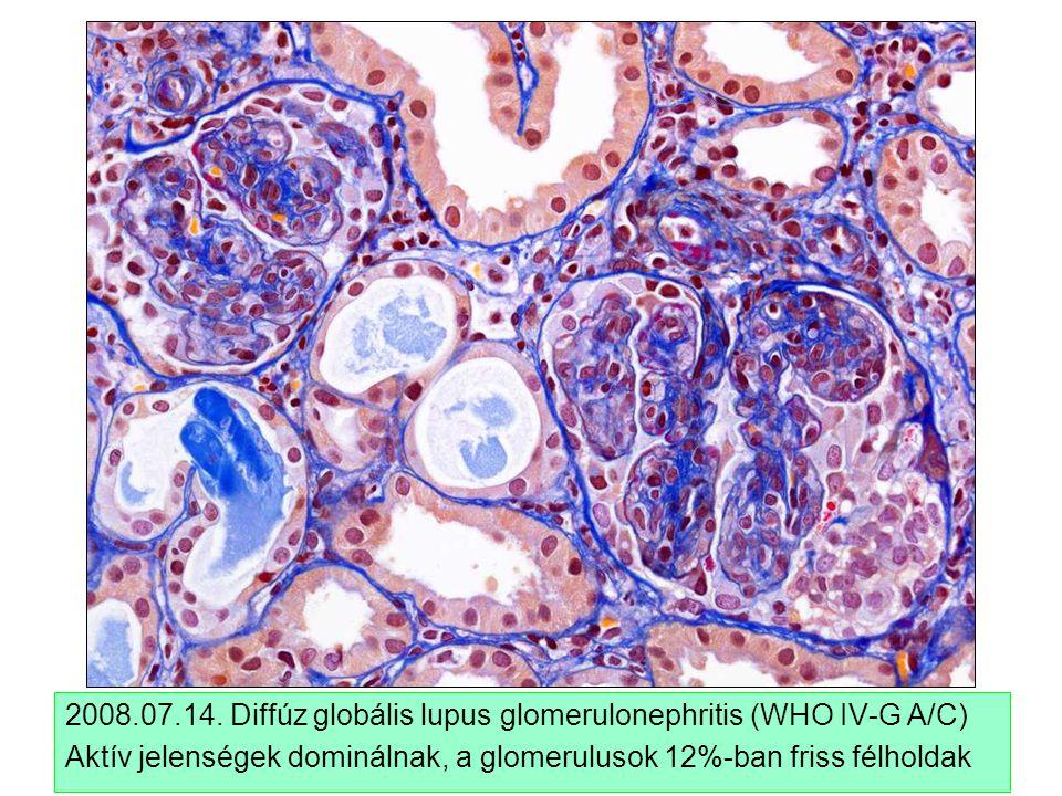 2008.07.14. Diffúz globális lupus glomerulonephritis (WHO IV-G A/C) Aktív jelenségek dominálnak, a glomerulusok 12%-ban friss félholdak