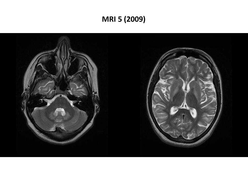 MRI 5 (2009)