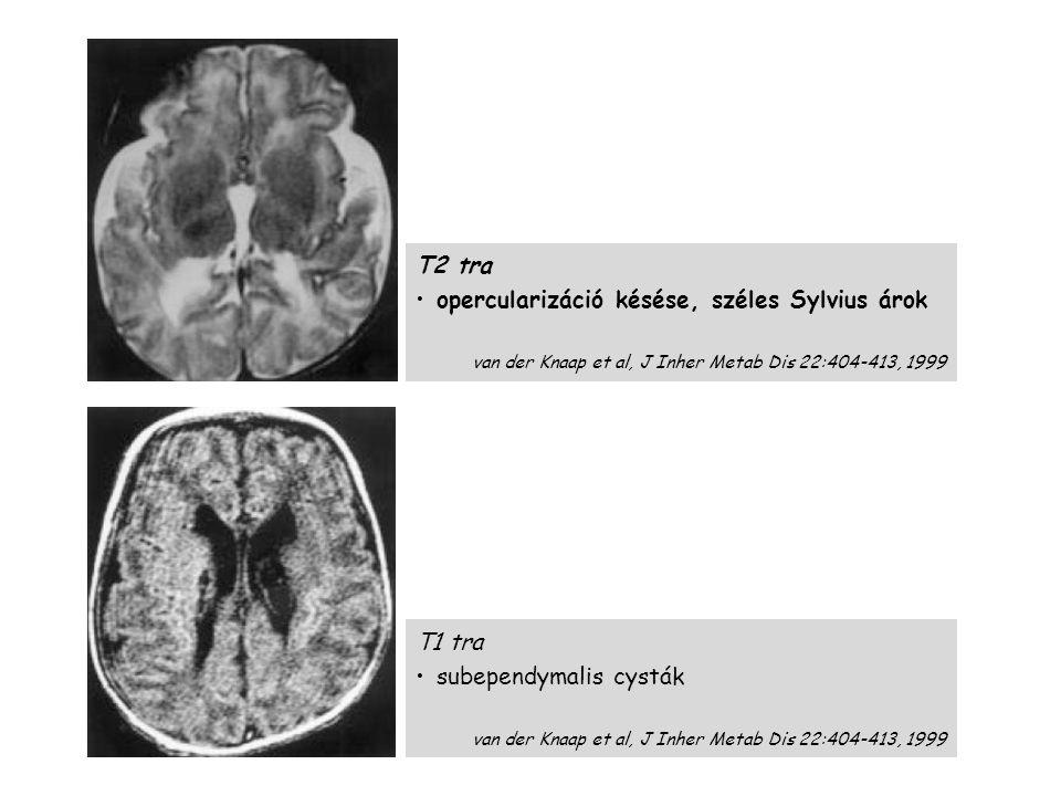 T1 tra subependymalis cysták van der Knaap et al, J Inher Metab Dis 22:404-413, 1999 T2 tra opercularizáció késése, széles Sylvius árok van der Knaap et al, J Inher Metab Dis 22:404-413, 1999 D-2 HGA