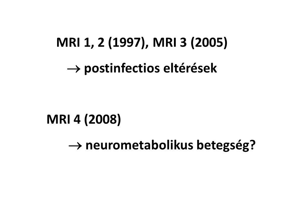 MRI 1, 2 (1997), MRI 3 (2005)  postinfectios eltérések MRI 4 (2008)  neurometabolikus betegség?