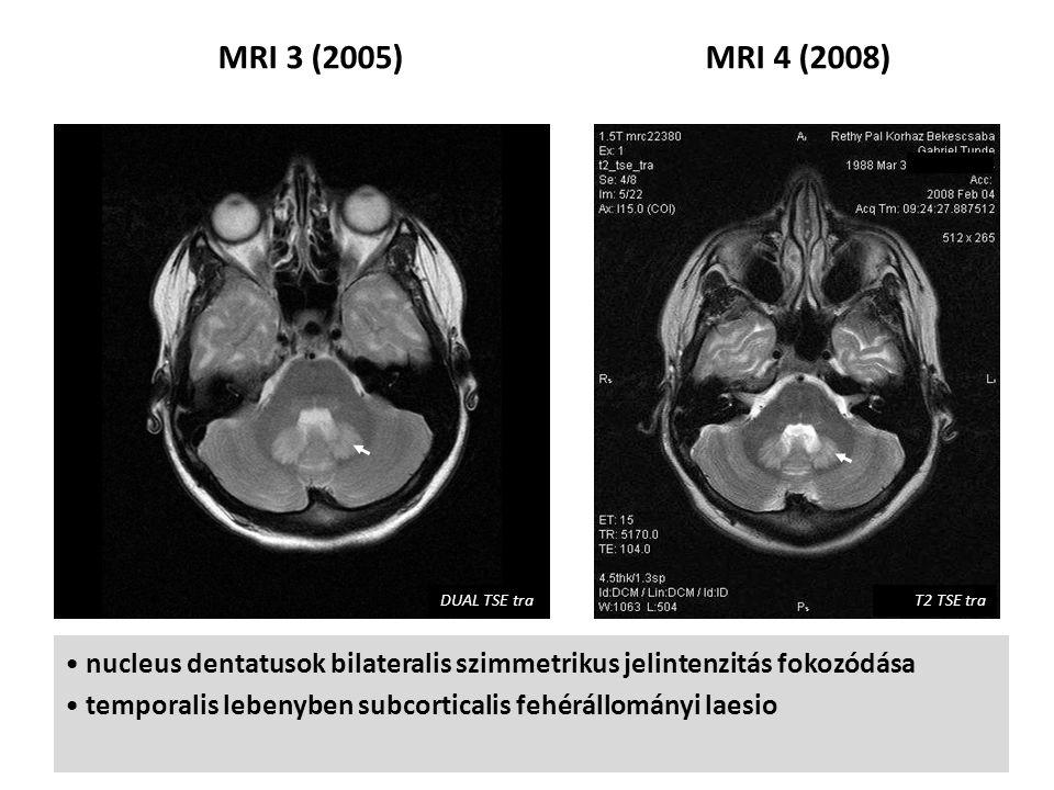 MRI 3 (2005)MRI 4 (2008) bilateralis szimmetrikus hyperintenzív globus pallidusok multiplex, fokális, subcorticalis fehérállományi érintettség (különösen insularisan), a centralis fehérállomány megkímélt gócok száma nőtt, agyi atrophia (főleg frontalisan) DUAL TSE traT2 TSE tra