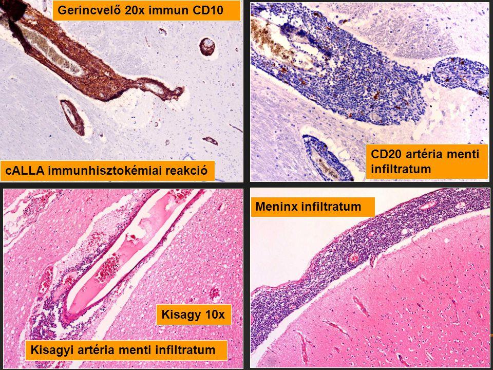 cALLA immunhisztokémiai reakció Kisagyi artéria menti infiltratum Meninx infiltratum CD20 artéria menti infiltratum Kisagy 10x Gerincvelő 20x immun CD