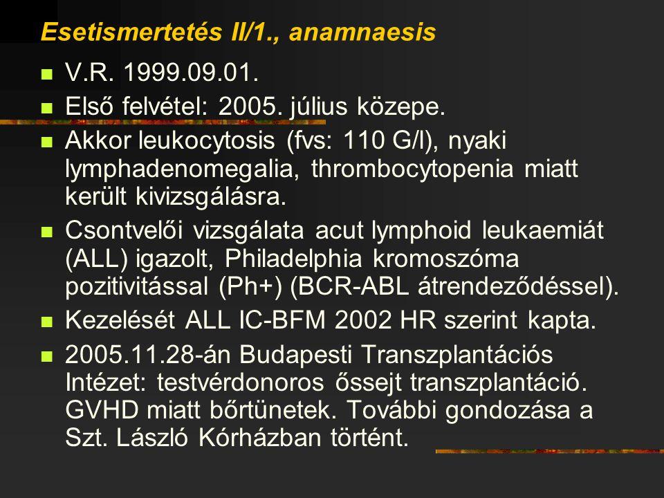 Esetismertetés II/1., anamnaesis V.R. 1999.09.01. Első felvétel: 2005. július közepe. Akkor leukocytosis (fvs: 110 G/l), nyaki lymphadenomegalia, thro