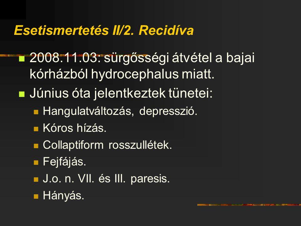 Esetismertetés II/2. Recidíva 2008.11.03: sürgősségi átvétel a bajai kórházból hydrocephalus miatt. Június óta jelentkeztek tünetei: Hangulatváltozás,