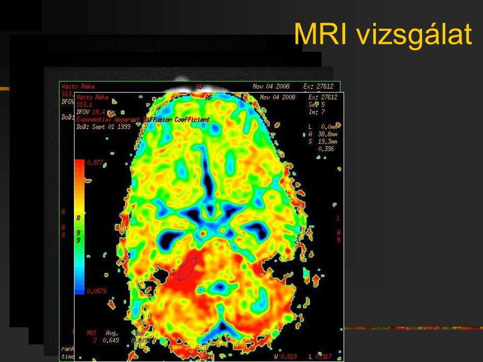 MRI vizsgálat
