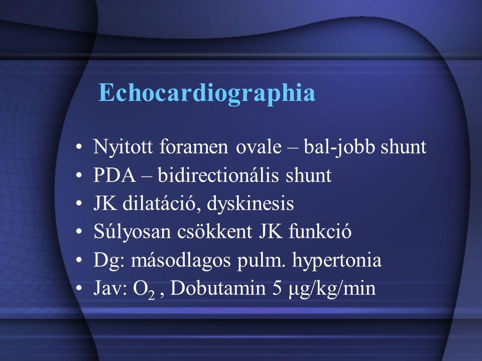 Echocardiographia Nyitott foramen ovale – bal-jobb shunt PDA – bidirectionális shunt JK dilatáció, dyskinesis Súlyosan csökkent JK funkció Dg: másodla