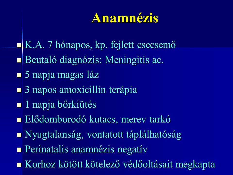 Anamnézis K.A. 7 hónapos, kp. fejlett csecsemő K.A. 7 hónapos, kp. fejlett csecsemő Beutaló diagnózis: Meningitis ac. Beutaló diagnózis: Meningitis ac
