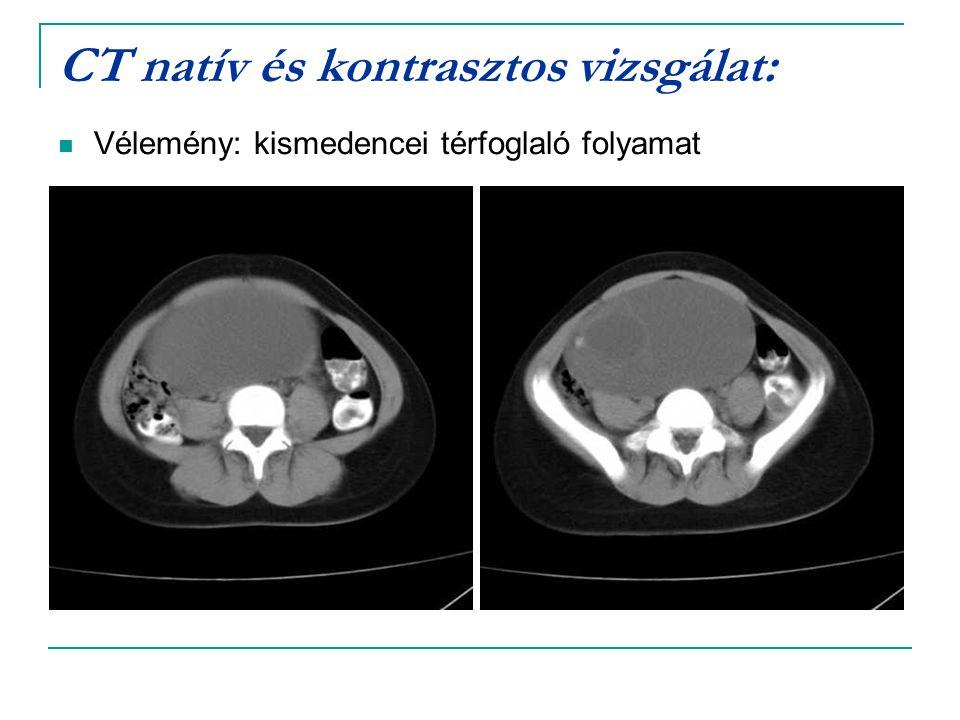 CT natív és kontrasztos vizsgálat: Vélemény: kismedencei térfoglaló folyamat