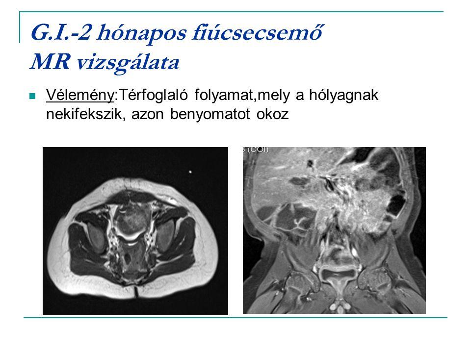 G.I.-2 hónapos fiúcsecsemő MR vizsgálata Vélemény:Térfoglaló folyamat,mely a hólyagnak nekifekszik, azon benyomatot okoz