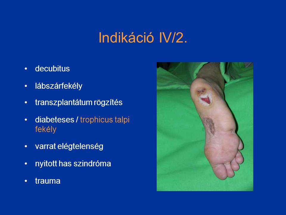 Indikáció IV/2.