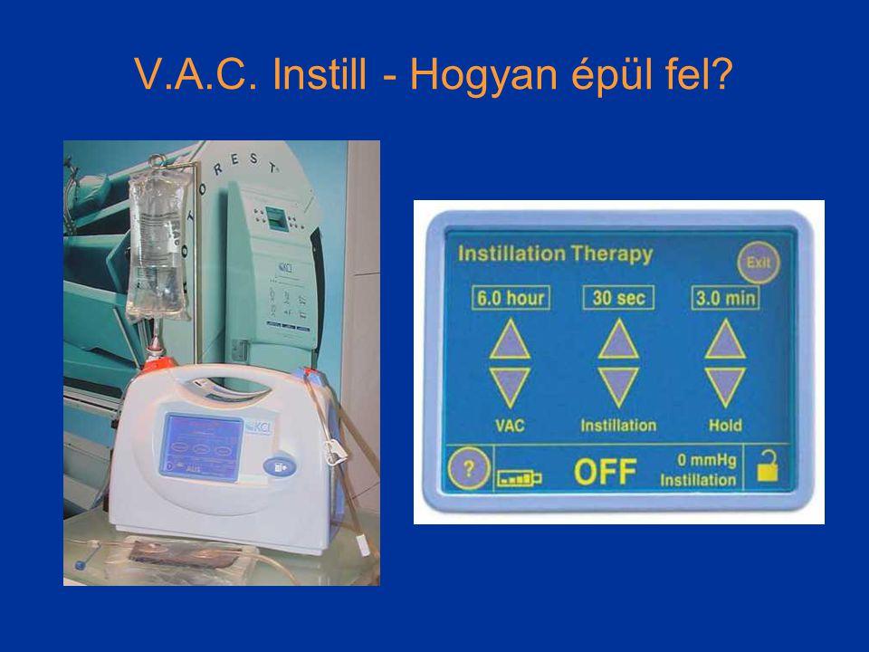 V.A.C. Instill - Hogyan épül fel?