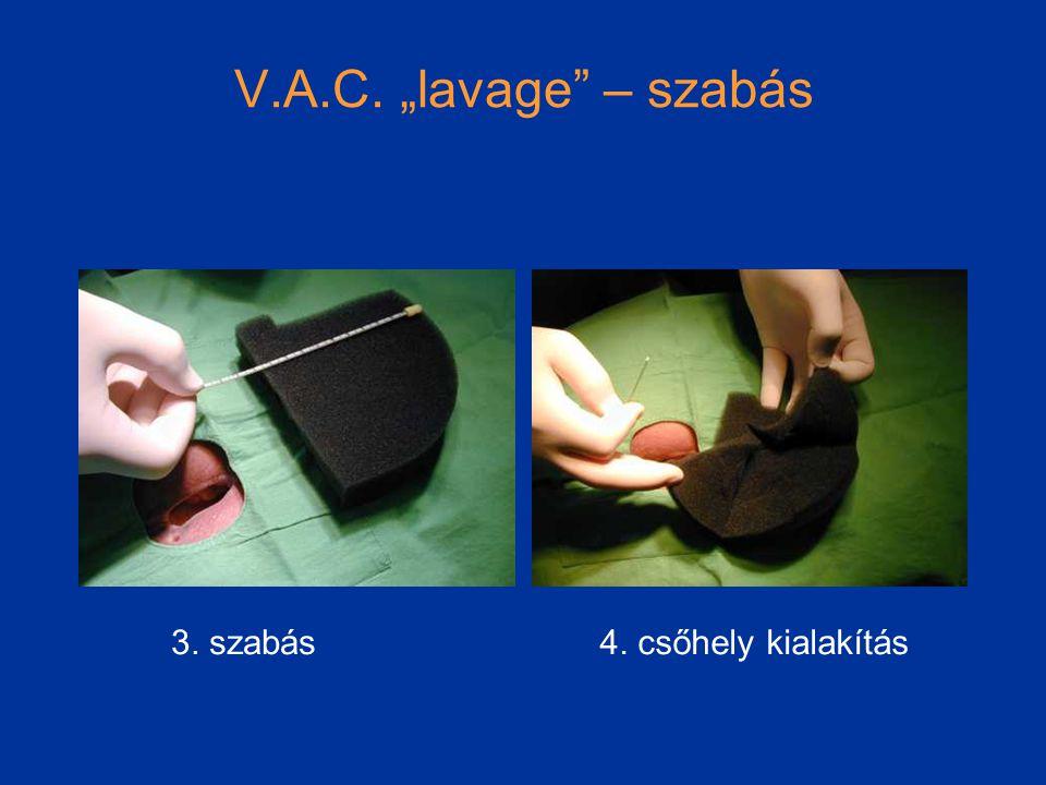"""V.A.C. """"lavage – szabás 3. szabás4. csőhely kialakítás"""
