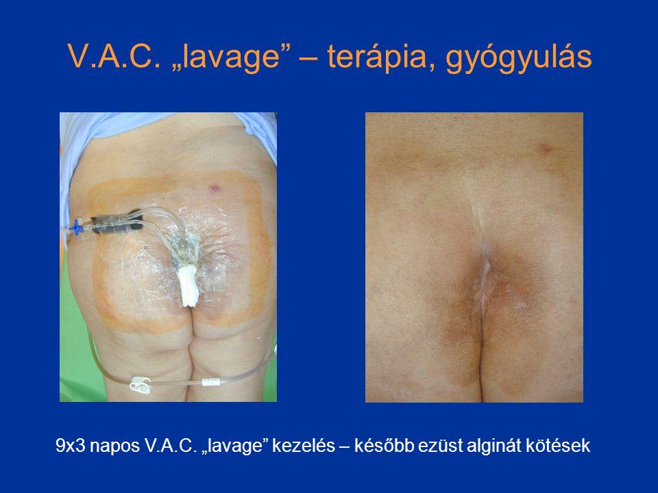 "V.A.C.""lavage – terápia, gyógyulás 9x3 napos V.A.C."