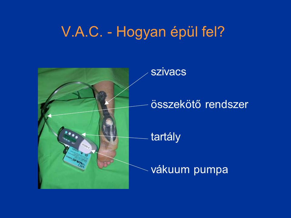 V.A.C. - Hogyan épül fel? szivacs összekötő rendszer tartály vákuum pumpa