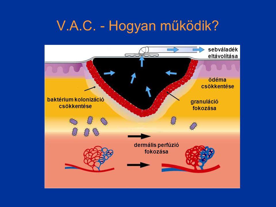 V.A.C.- Hogyan működik.