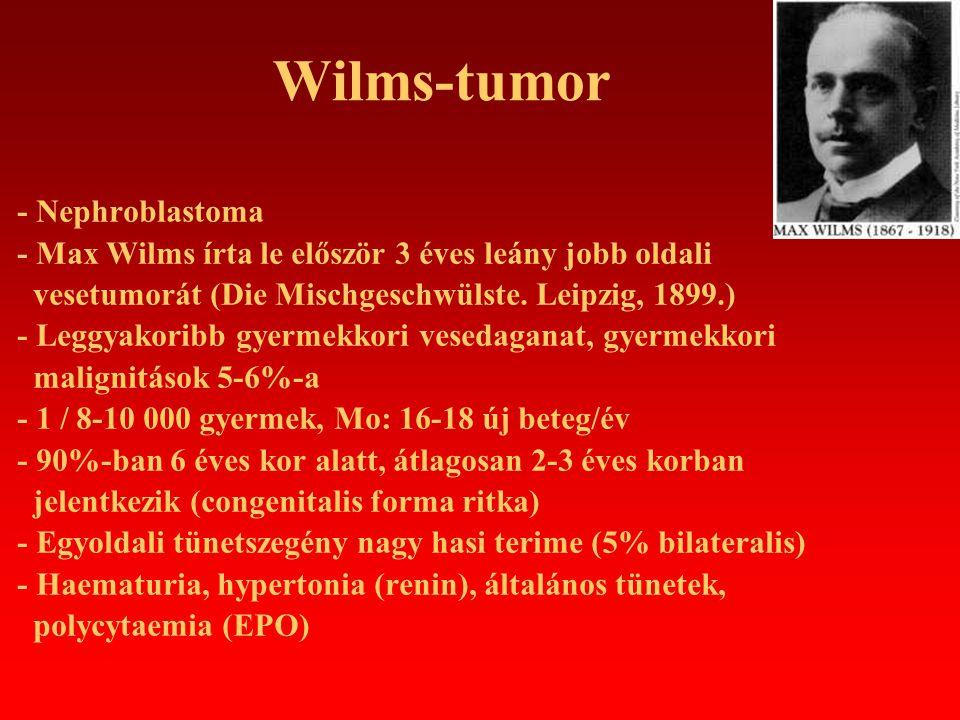 Wilms-tumor - Extrarenalis előfordulás: retroperitoneum, sacrococcygealis régió, testis, uterus, inguinalis csatorna, mediastinum - Tüdőmetasztázis a primer tumor felfedezésekor - Terjedés: perirenális lágyrészekbe, v.