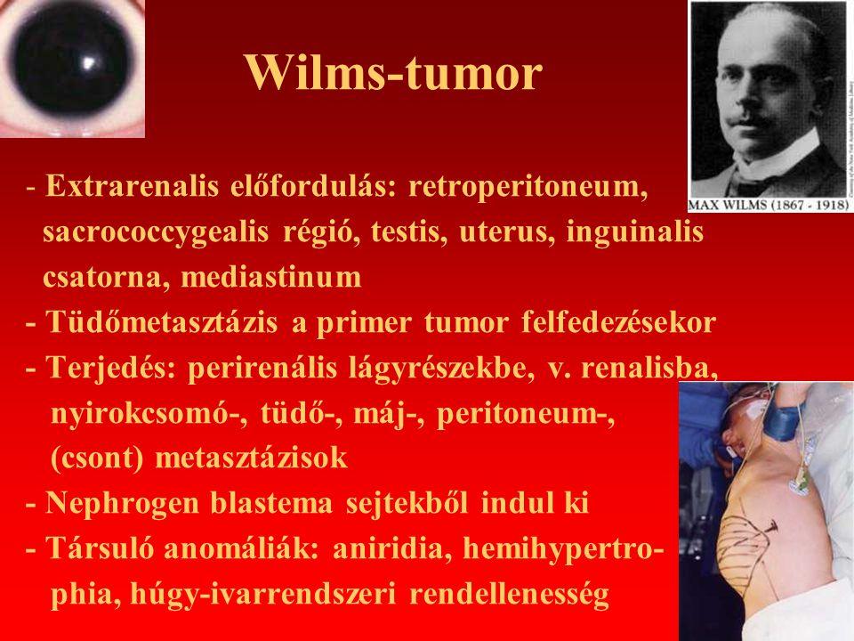 Wilms-tumor - WAGR sy (Wilms-tumor, Aniridia, Genito- urinaris anomáliák, mentális Retardáció), - Denys-Drash-sy (gonadális dysgenesis, glomerulosclerosis, Wilms-tumor), - Beckwith-Wiedemann-sy (exophtalmus, macroglossia, gigantismus, hemihypertrophia, vese medullaris cysta, hypoglycaemia) - Genetika: WT-1 gén: 11p13 deléció, missense mutáció, WT-2 gén: 11p15.5 deléció