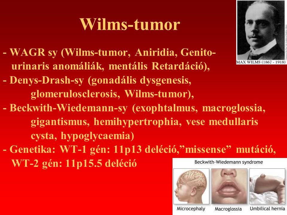 Wilms-tumor - WAGR sy (Wilms-tumor, Aniridia, Genito- urinaris anomáliák, mentális Retardáció), - Denys-Drash-sy (gonadális dysgenesis, glomeruloscler