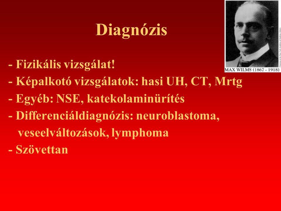 Diagnózis - Fizikális vizsgálat! - Képalkotó vizsgálatok: hasi UH, CT, Mrtg - Egyéb: NSE, katekolaminürítés - Differenciáldiagnózis: neuroblastoma, ve