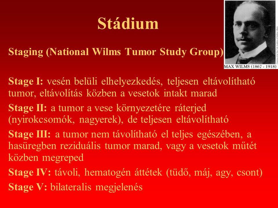 Stádium Staging (National Wilms Tumor Study Group) Stage I: vesén belüli elhelyezkedés, teljesen eltávolítható tumor, eltávolítás közben a vesetok int