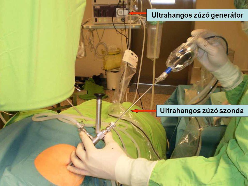 Ultrahangos zúzó szonda Ultrahangos zúzó generátor