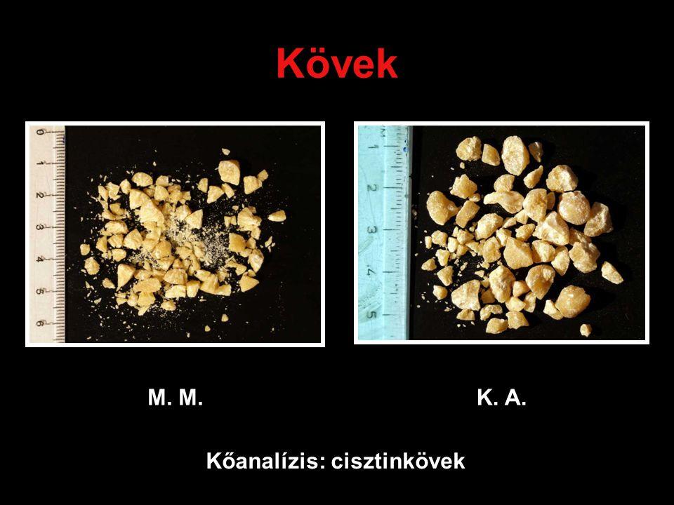 Kövek M. K. A. Kőanalízis: cisztinkövek