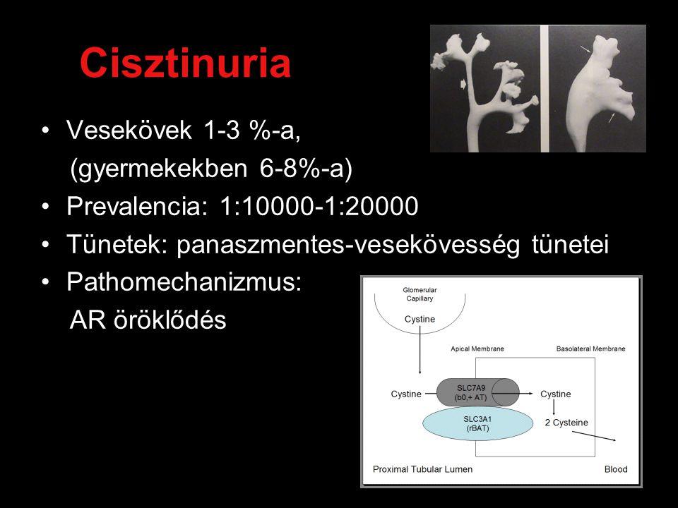 Cisztinuria Vesekövek 1-3 %-a, (gyermekekben 6-8%-a) Prevalencia: 1:10000-1:20000 Tünetek: panaszmentes-vesekövesség tünetei Pathomechanizmus: AR öröklődés