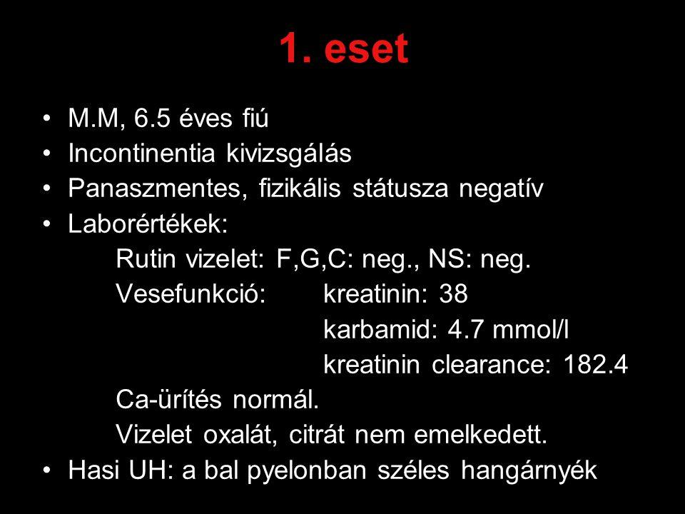 1. eset M.M, 6.5 éves fiú Incontinentia kivizsgálás Panaszmentes, fizikális státusza negatív Laborértékek: Rutin vizelet: F,G,C: neg., NS: neg. Vesefu