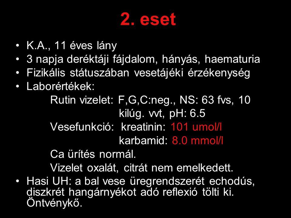 2. eset K.A., 11 éves lány 3 napja deréktáji fájdalom, hányás, haematuria Fizikális státuszában vesetájéki érzékenység Laborértékek: Rutin vizelet: F,