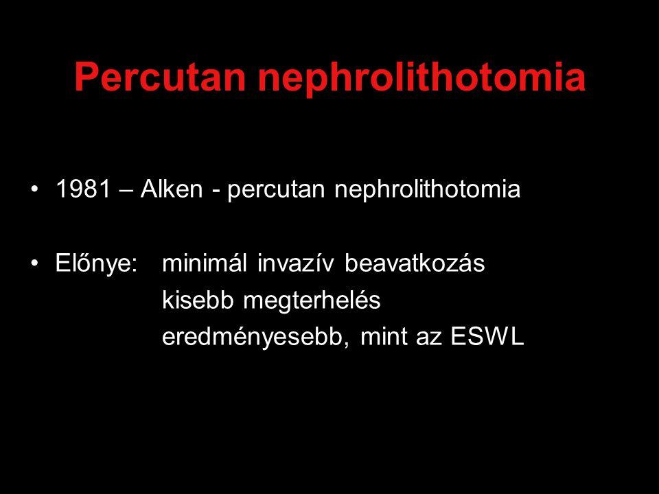 Percutan nephrolithotomia 1981 – Alken - percutan nephrolithotomia Előnye: minimál invazív beavatkozás kisebb megterhelés eredményesebb, mint az ESWL