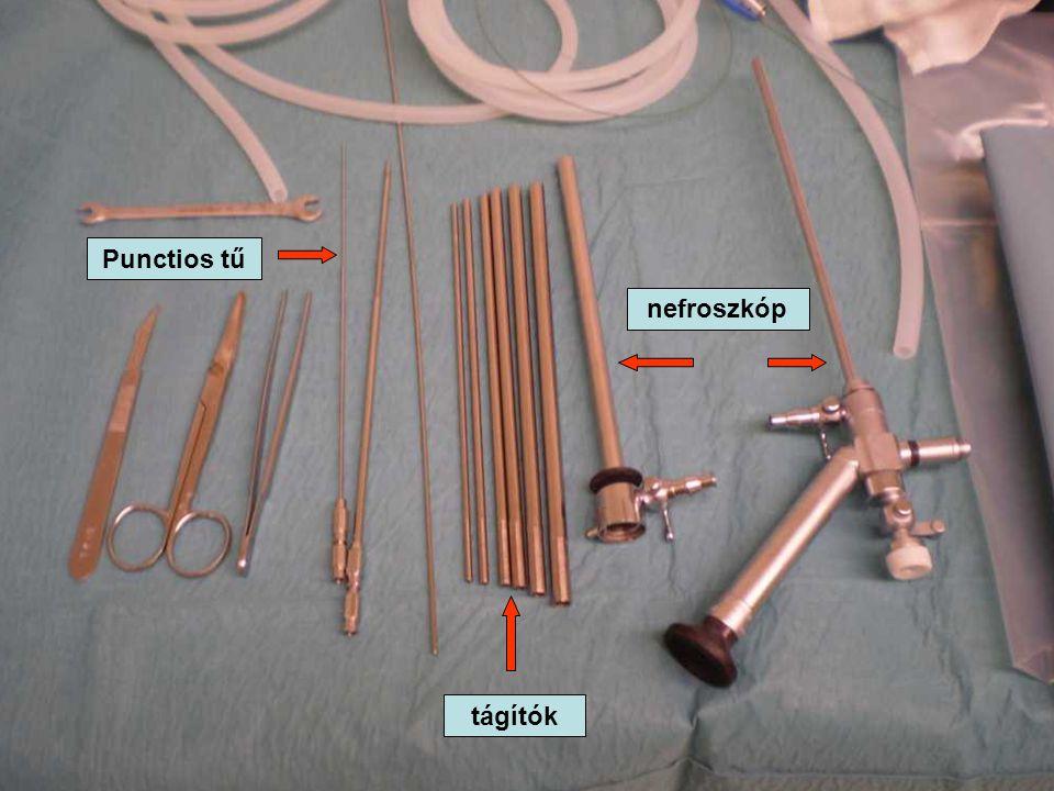 Punctios tű tágítók nefroszkóp