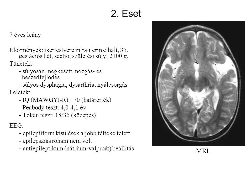 2. Eset 7 éves leány Előzmények: ikertestvére intrauterin elhalt, 35. gestációs hét, sectio, születési súly: 2100 g. Tünetek: - súlyosan megkésett moz