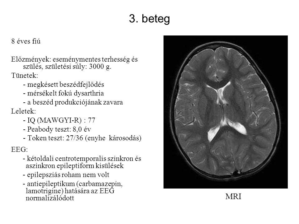 3. beteg 8 éves fiú Előzmények: eseménymentes terhesség és szülés, születési súly: 3000 g. Tünetek: - megkésett beszédfejlődés - mérsékelt fokú dysart