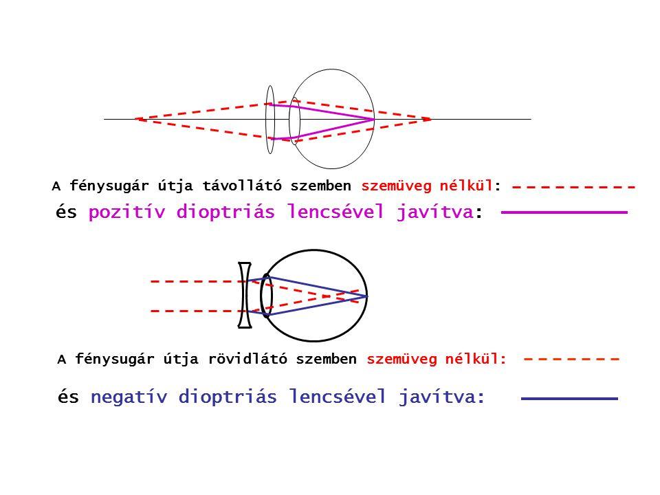 D = D 1 + D 2 D1D1 D2D2 1,5+ 2,5 = 4 D3D3 D4D4 -1,5+ 2,5 = 1 A szorosan egymásmellé tett lencsék dioptriája összeadódik.