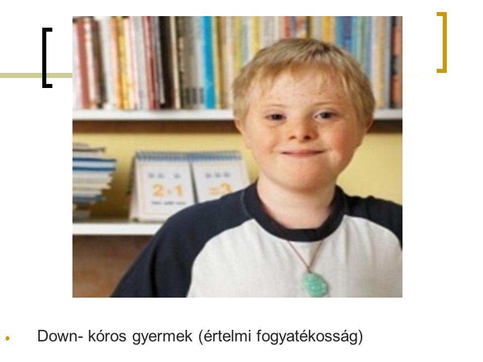4. Melléklet  Down- kóros gyermek (értelmi fogyatékosság)
